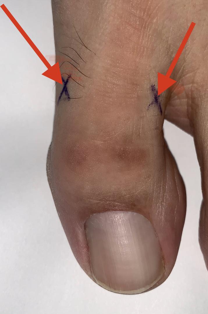 Entfernen lassen zehennagel Nagel entfernen